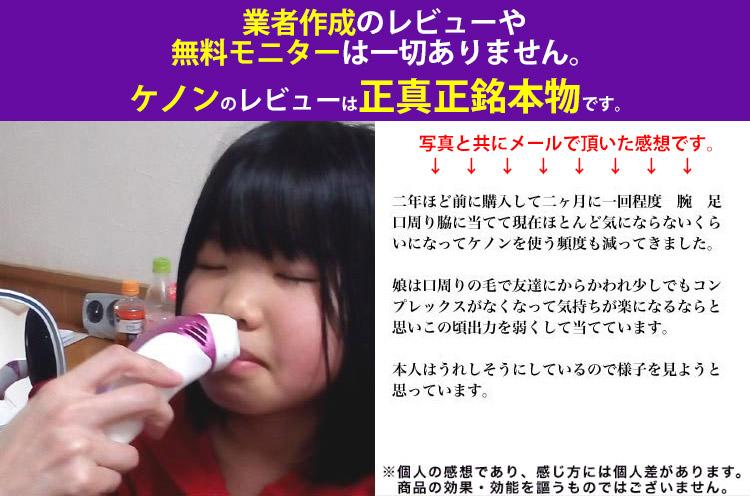 子供の鼻下に照射している写真。弱めに照射しているという感想